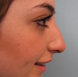 Droopy And Assymetric Nose. After Treatment photo: Female - right side view