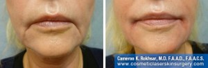 Juvederm In New York City By Dr. Cameron Rokhsar - Before and After Treatment Photos: Female, frontal view