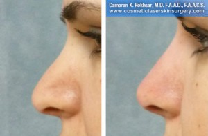 Non-Surgical Nose Job By Dr. Cameron Rokhsar: Before and After Treatment Photo - Female, side view
