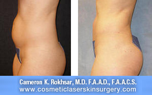 Liposuction And Liposculpture. Before and After Treatment Photos: Female, side view