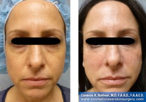 Restylane: Before and After Treatment Photos - Female, frontal view