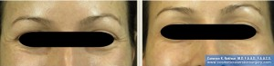 Botox Before and After Treatment Photos: Female - frontal view