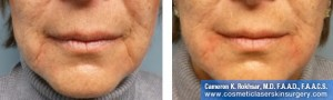 Fillers New York City - Before And After Treatment Photo: Female, frontal view
